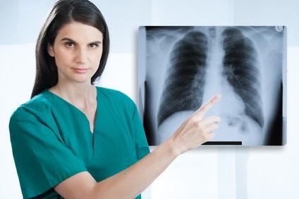 lungenfacharzt frankfurt